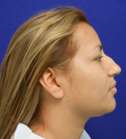 rhinoplasty, Nose Surgery (Rhinoplasty) Miami