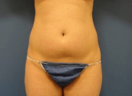 Liposuction, Liposuction (Liposculpture) Miami