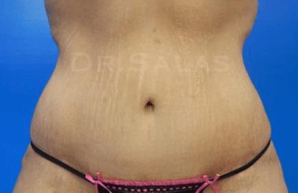 , Tummy Tuck (Abdominoplasty) Miami