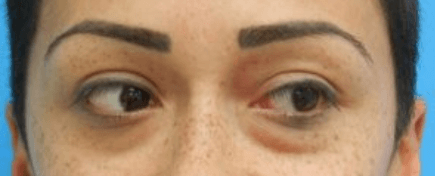 , Eyelid Lift (Blepharoplasty) and Brow Lift Miami