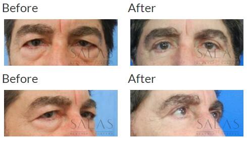 , Eyelid Surgery