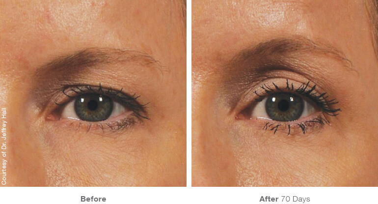 , Ultherapy Face and Body Treatment Miami