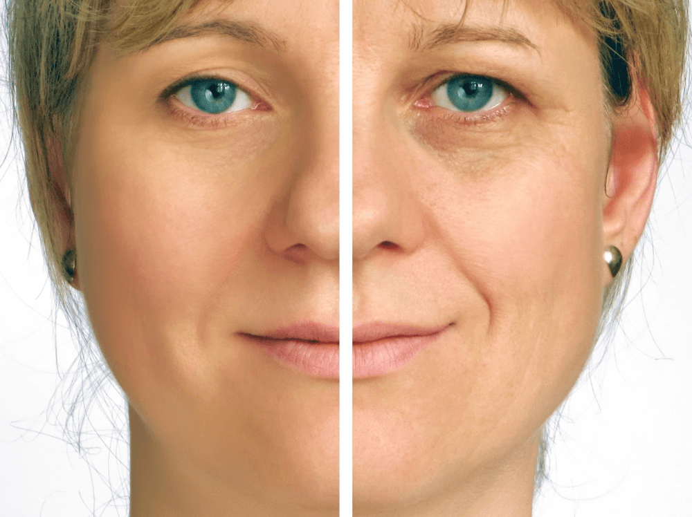 Can a Facelift Eliminate Wrinkles?